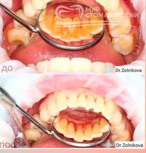 Пример до и после отбеливания зубов