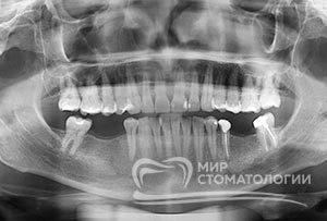 Пример Панорамный снимок зубов