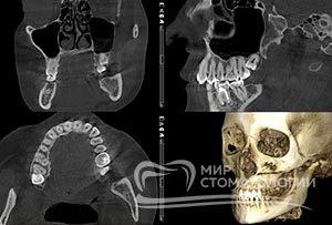 Пример Компьютерная томография